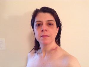 After biopsy surgery Jan 8 2013